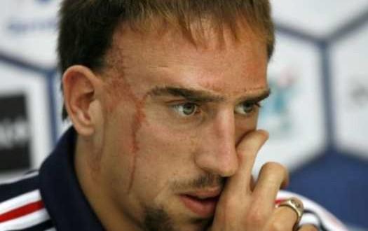 Franck Ribery scars photo