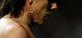 Tevez scars